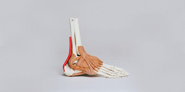 Az Achilles-ín gyulladás, szakadás