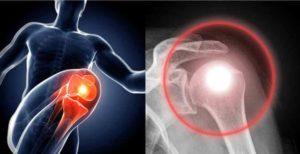 Artrózis miatti térdfájdalom