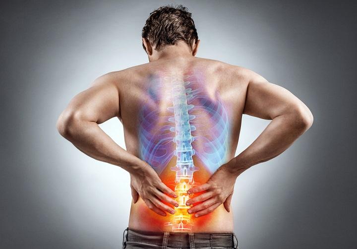 Az isiász okozta hátfájdalom